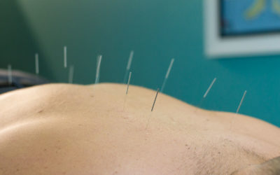 Dry Needling and Acupuncture: What's the difference?